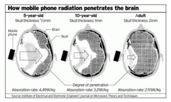 ondes téléphone portable cerveau enfant